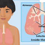 Pneumonia beating malaria mortality records in Nigeria